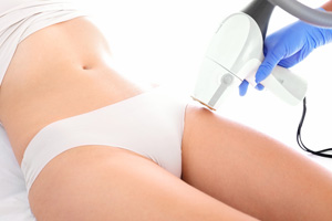 Skin Tightening with Radio Frequency