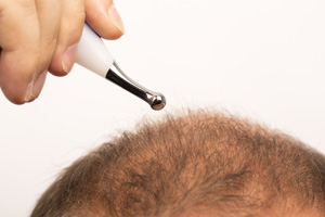 Alopecia Restoration Using FUE
